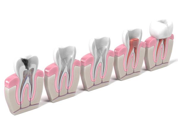 Endodoncia-clinica-dental-jorge-mato-verin-salamanca-la-alberca