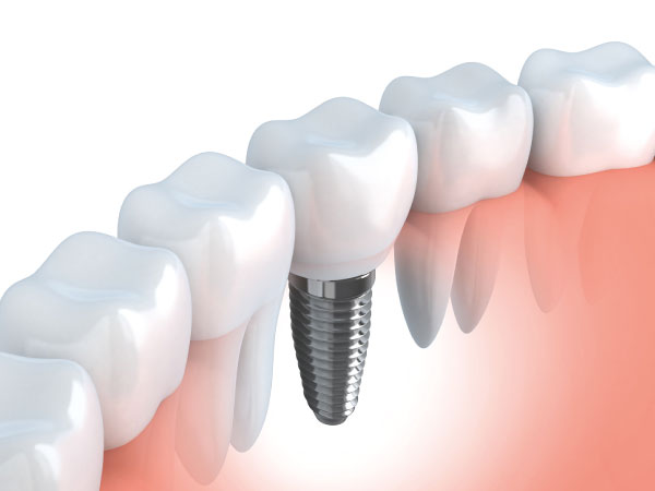 Implantes-dentales-clinica-dental-jorge-mato-verin-salamanca-la-alberca