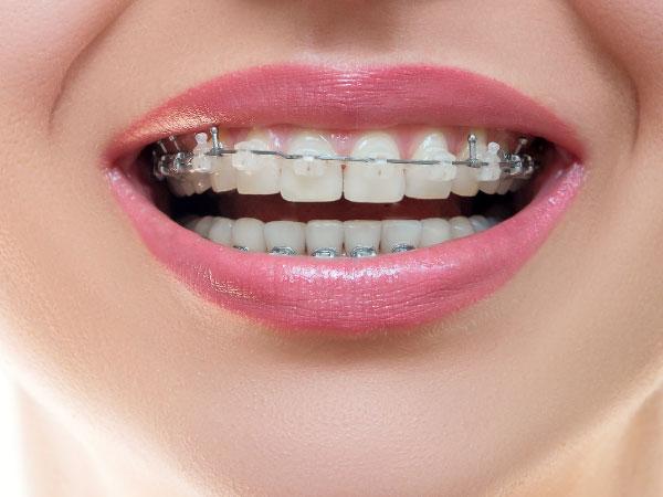 Ortodoncia-clinica-dental-jorge-mato-verin-salamanca-la-alberca-interior