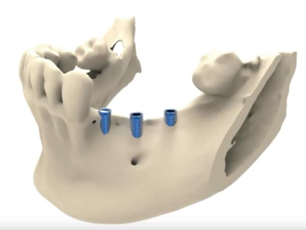 regeneracion-osea-tornillos-clinica-dental-jorge-mato-verin-salamanca-la-alberca